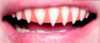 Haifisch Veneer Zähne Pro