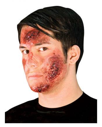 Road Rash wound