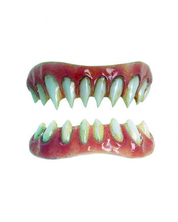 Dental Veneers Gaul FX Teeth