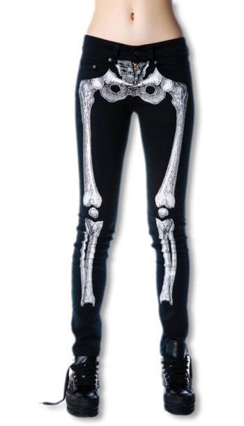 Skelett Skinny Jeans