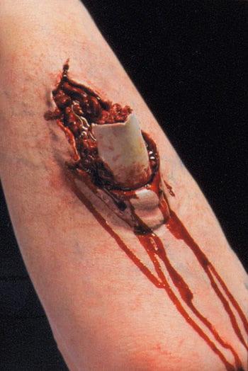 Offener Knochenbruch Wunde