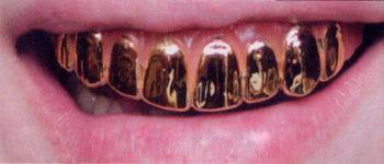 Gold Veneer Teeth Pro