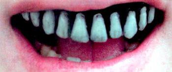 Skelett Veneer Zähne Pro
