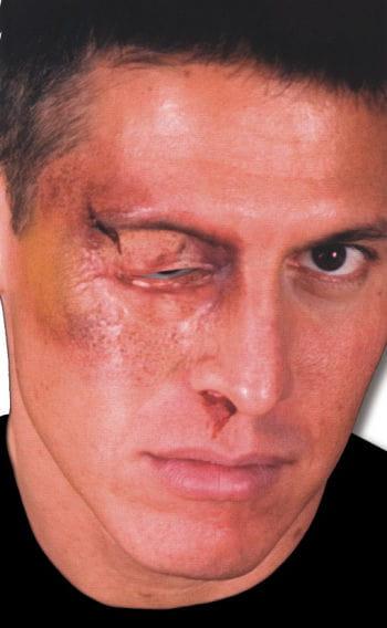 Geschwollenes Auge Wunde