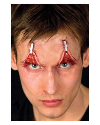 Augenlidstraffung Applikation