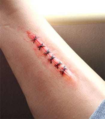 Bio SFX Stitches Wunde