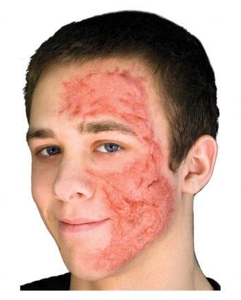 Burn Scar / Brandwunden Gel